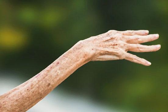 Какие документы нужны для оформления пенсии по инвалидности 1, 2, 3 группы